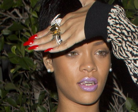 Rihanna wears gold teeth grillz.